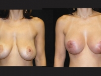 Atlanta Breast Augmentation Patient 17 Before & After