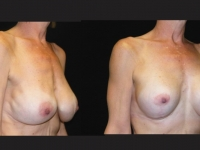 Atlanta Breast Augmentation Patient 19 Before & After