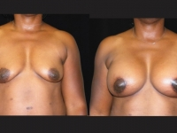 Atlanta Breast Augmentation Patient 20 Before & After
