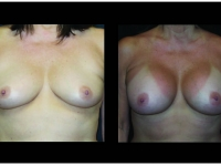 Atlanta Breast Augmentation Patient 82 Before & After