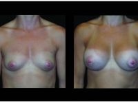 Atlanta Breast Augmentation Patient 81 Before & After