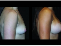 Atlanta Breast Augmentation Patient 79 Before & After