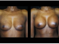 Atlanta Breast Augmentation Patient 78 Before & After