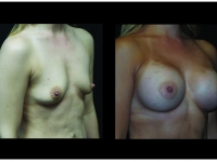 Atlanta Breast Augmentation Patient 85 Before & After