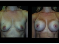 Atlanta Breast Augmentation Patient 84 Before & After