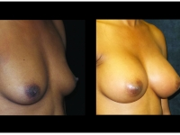 Atlanta Breast Augmentation Patient 86 Before & After