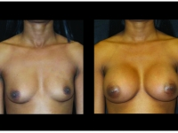 Atlanta Breast Augmentation Patient 87 Before & After