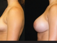 Atlanta Breast Augmentation Patient 05 Before & After