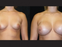 Atlanta Breast Augmentation Patient 06 Before & After