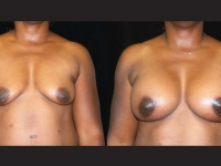 Atlanta Breast Augmentation Patient 08 Before & After