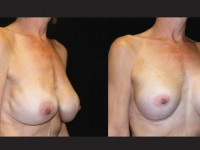Atlanta Breast Augmentation Patient 09 Before & After