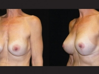 Atlanta Breast Augmentation Patient 10 Before & After