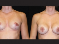 Atlanta Breast Augmentation Patient 11 Before & After