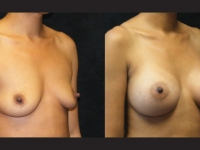 Atlanta Breast Augmentation Patient 12 Before & After