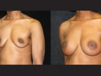 Atlanta Breast Augmentation Patient 21 Before & After
