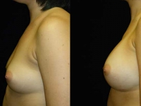 Atlanta Breast Augmentation Patient 04 Before & After