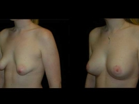 Atlanta Breast Augmentation Patient 58 Before & After