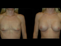 Atlanta Breast Augmentation Patient 59 Before & After