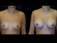 Atlanta Breast Augmentation Patient 61 Before & After