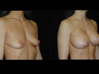 Atlanta Breast Augmentation Patient 62 Before & After