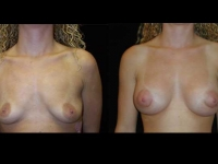 Atlanta Breast Augmentation Patient 63 Before & After