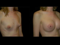 Atlanta Breast Augmentation Patient 65 Before & After