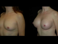 Atlanta Breast Augmentation Patient 66 Before & After