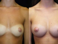 Atlanta Breast Augmentation Patient 03 Before & After