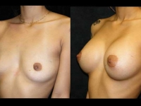 Atlanta Breast Augmentation Patient 53 Before & After