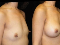 Atlanta Breast Augmentation Patient 13 Before & After