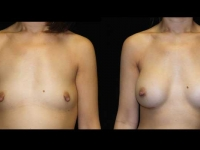 Atlanta Breast Augmentation Patient 14 Before & After