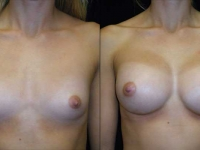 Atlanta Breast Augmentation Patient 07 Before & After
