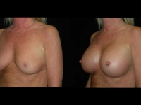 Atlanta Breast Augmentation Patient 30 Before & After