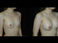 Atlanta Breast Augmentation Patient 32 Before & After