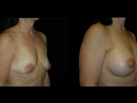 Atlanta Breast Augmentation Patient 55 Before & After