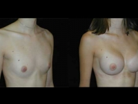 Atlanta Breast Augmentation Patient 56 Before & After