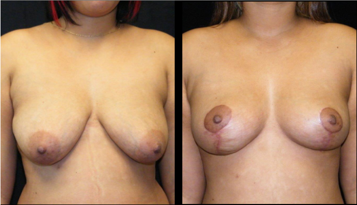 Breast Lift / Mastopexy Patient 17 Before & After