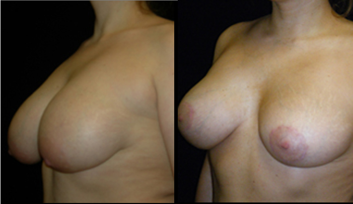Breast Lift / Mastopexy Patient 19 Before & After