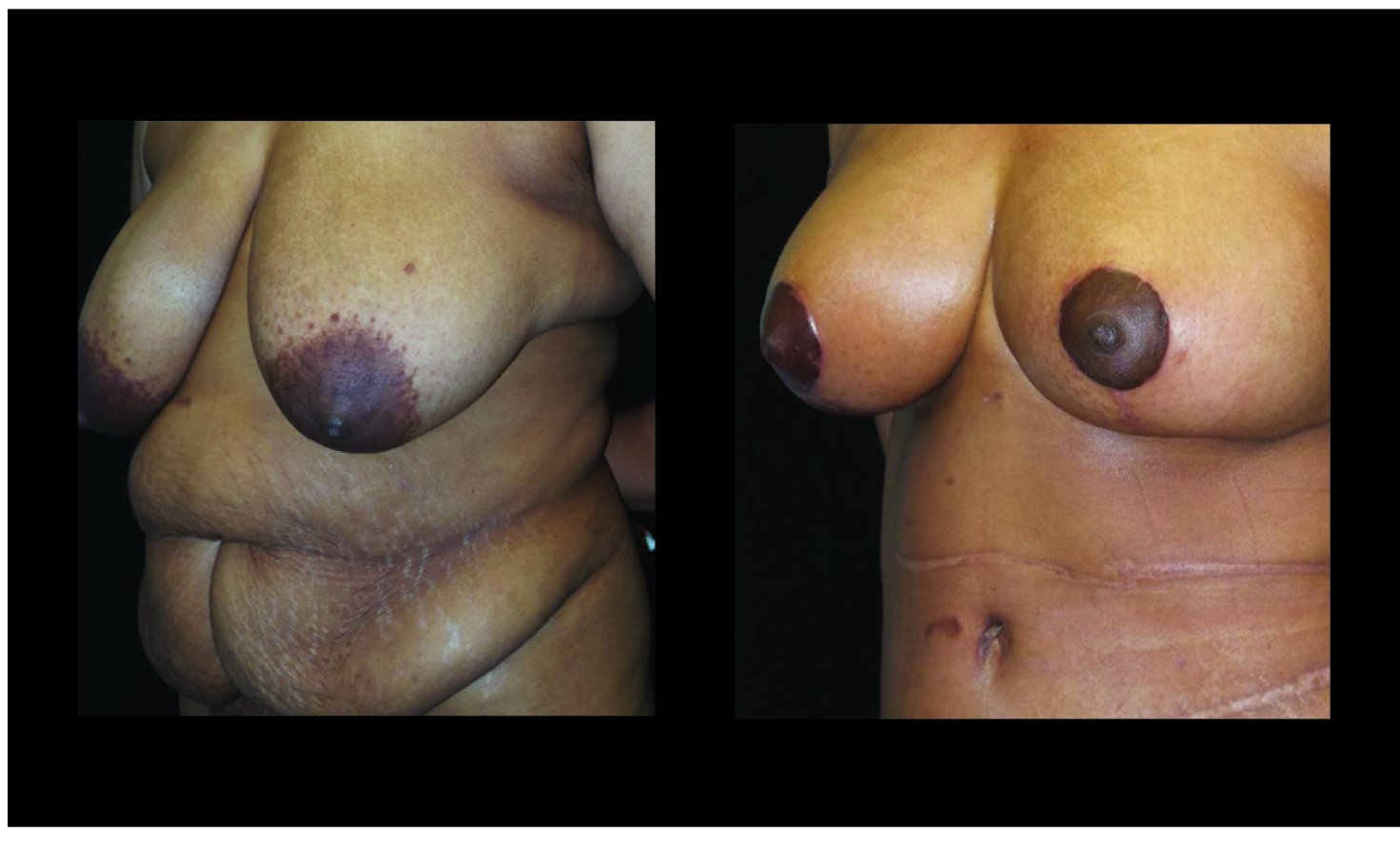 Breast Lift / Mastopexy Patient 30 Before & After