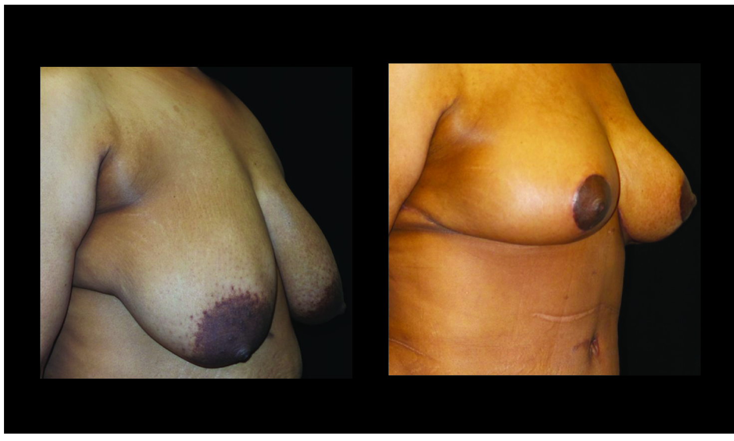 Breast Lift / Mastopexy Patient 31 Before & After