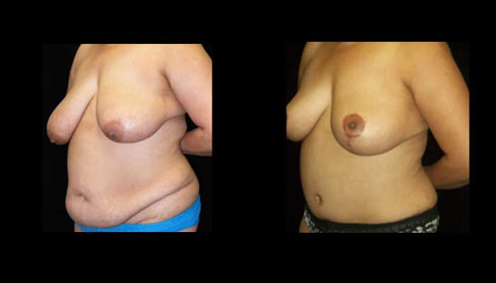 Breast Lift / Mastopexy Patient 10 Before & After