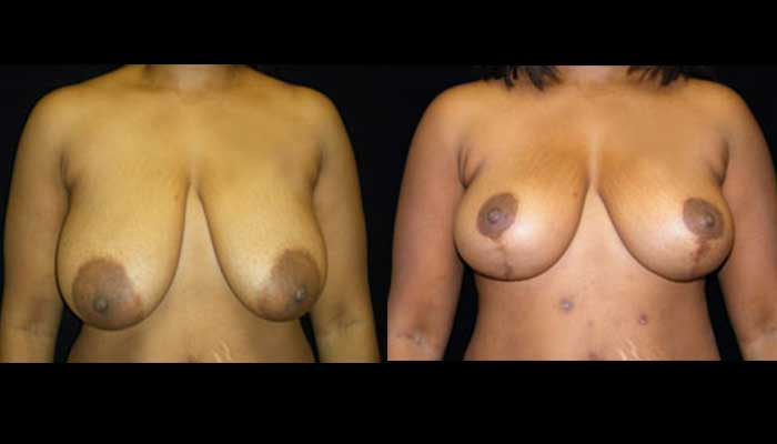 Breast Lift / Mastopexy Patient 12 Before & After