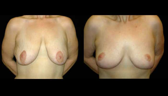 Breast Lift / Mastopexy Patient 13 Before & After