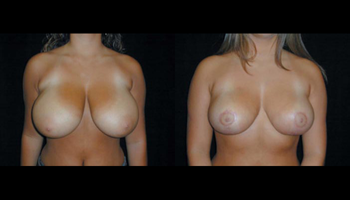 Breast Lift / Mastopexy Patient 21 Before & After