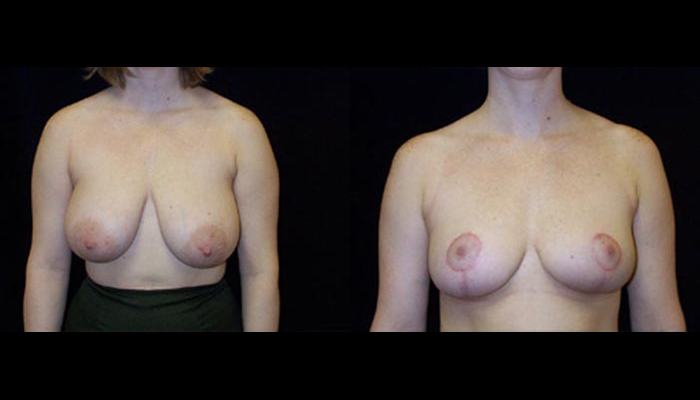 Breast Lift / Mastopexy Patient 22 Before & After