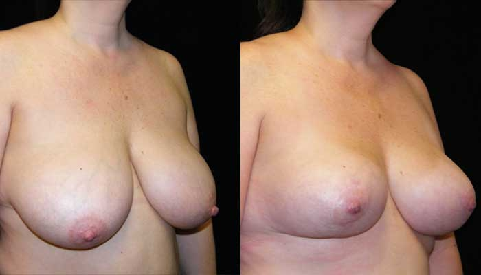Breast Lift / Mastopexy Patient 02 Before & After