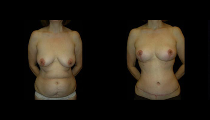 Breast Lift / Mastopexy Patient 24 Before & After