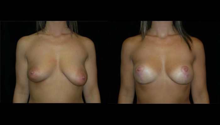 Breast Lift / Mastopexy Patient 25 Before & After