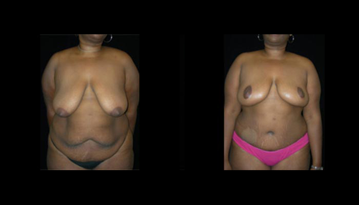 Breast Lift / Mastopexy Patient 26 Before & After