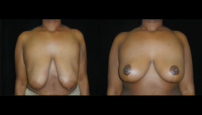 Breast Lift / Mastopexy Patient 28 Before & After
